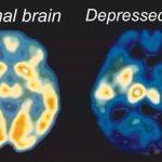 Depresja to nie wybór, ani ciemna chmura, lecz forma uszkodzenia mózgu.