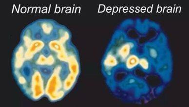 depresja uszkodzenie mózgu